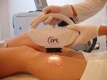 Depilacja laserowa nóg